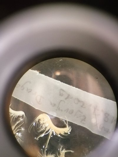 Niphargus sp under the microscope